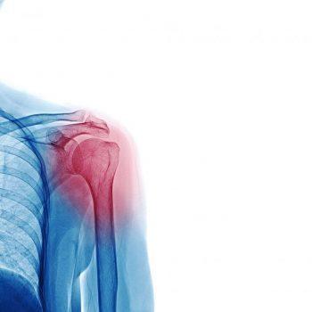 Shoulder arthritis: causes, diagnosis and treatment