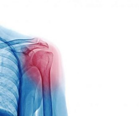 Shoulder arthritis: causes, diagnosis and treatment
