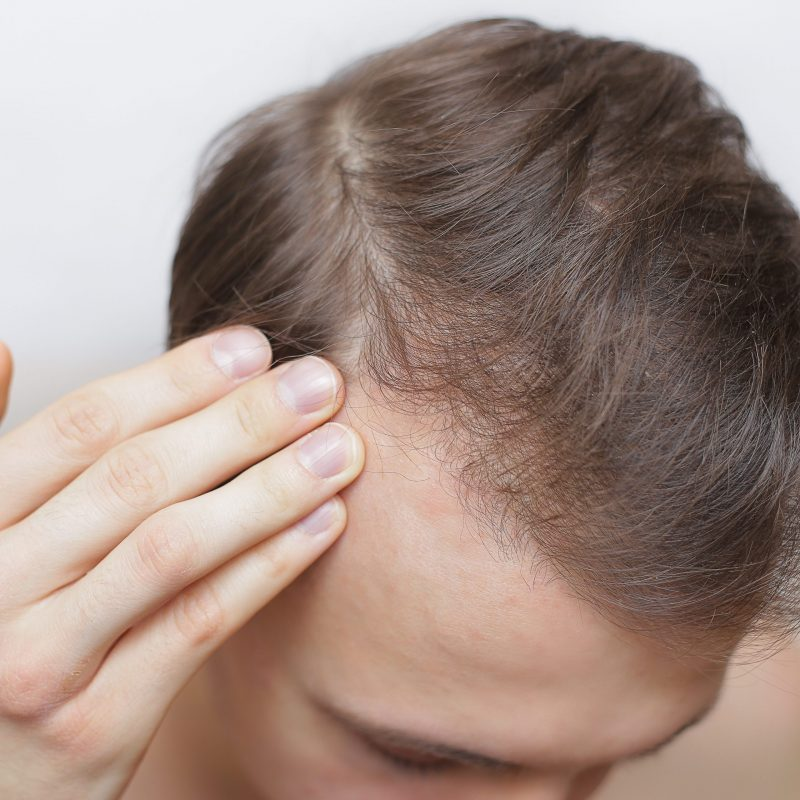 The Psychology of Hair Loss