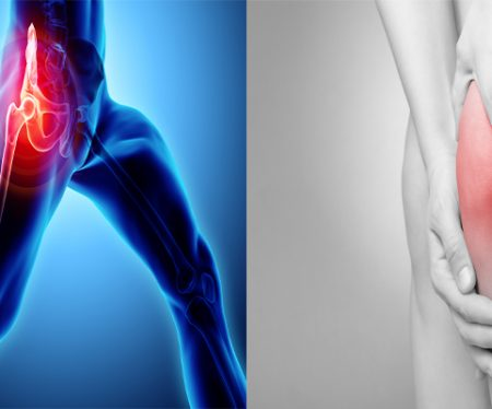 40% Off All Knee and Hip Consultations Includinga Free Ultrasound Scan!